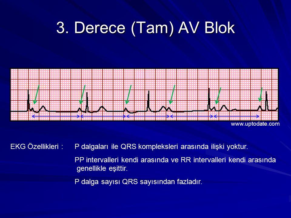 3.Derece (Tam) AV Blok EKG Özellikleri : P dalgaları ile QRS kompleksleri arasında ilişki yoktur.