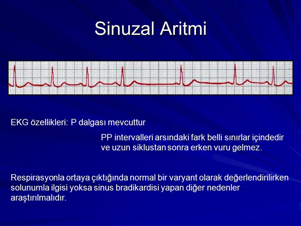 Sinuzal Aritmi EKG özellikleri:P dalgası mevcuttur PP intervalleri arsındaki fark belli sınırlar içindedir ve uzun siklustan sonra erken vuru gelmez.