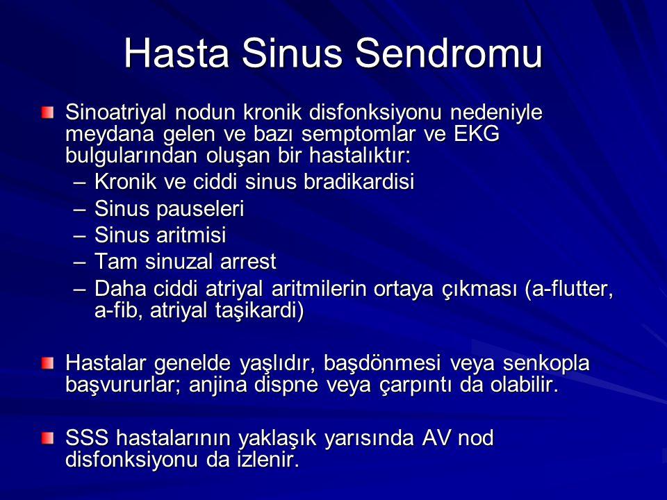 Hasta Sinus Sendromu Sinoatriyal nodun kronik disfonksiyonu nedeniyle meydana gelen ve bazı semptomlar ve EKG bulgularından oluşan bir hastalıktır: –Kronik ve ciddi sinus bradikardisi –Sinus pauseleri –Sinus aritmisi –Tam sinuzal arrest –Daha ciddi atriyal aritmilerin ortaya çıkması (a-flutter, a-fib, atriyal taşikardi) Hastalar genelde yaşlıdır, başdönmesi veya senkopla başvururlar; anjina dispne veya çarpıntı da olabilir.