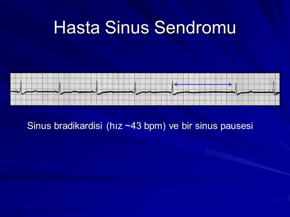 Hasta Sinus Sendromu Sinus bradikardisi (hız ~43 bpm) ve bir sinus pausesi