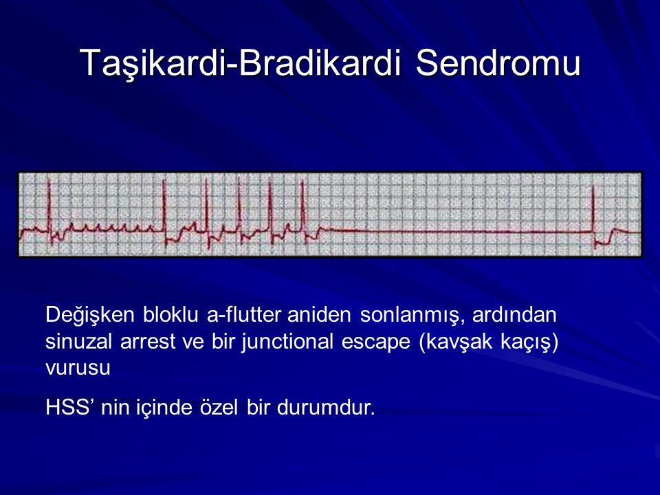 Taşikardi-Bradikardi Sendromu Değişken bloklu a-flutter aniden sonlanmış, ardından sinuzal arrest ve bir junctional escape (kavşak kaçış) vurusu HSS' nin içinde özel bir durumdur.