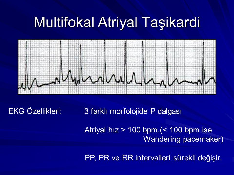 Multifokal Atriyal Taşikardi EKG Özellikleri: 3 farklı morfolojide P dalgası Atriyal hız > 100 bpm.(< 100 bpm ise Wandering pacemaker) PP, PR ve RR intervalleri sürekli değişir.