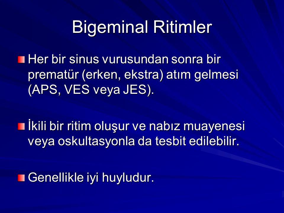 Bigeminal Ritimler Her bir sinus vurusundan sonra bir prematür (erken, ekstra) atım gelmesi (APS, VES veya JES).