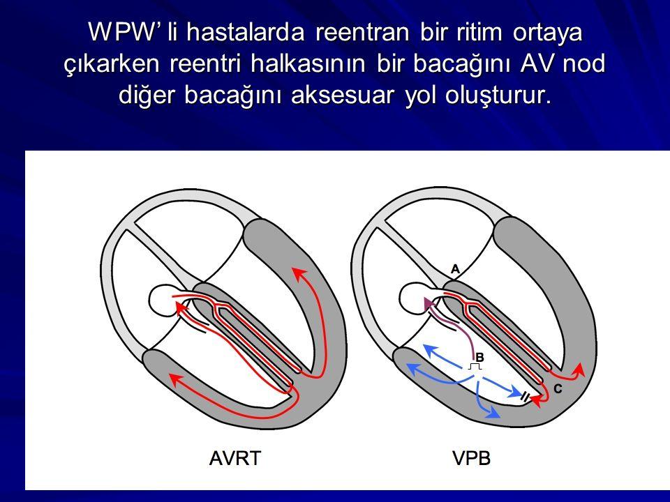 WPW' li hastalarda reentran bir ritim ortaya çıkarken reentri halkasının bir bacağını AV nod diğer bacağını aksesuar yol oluşturur.