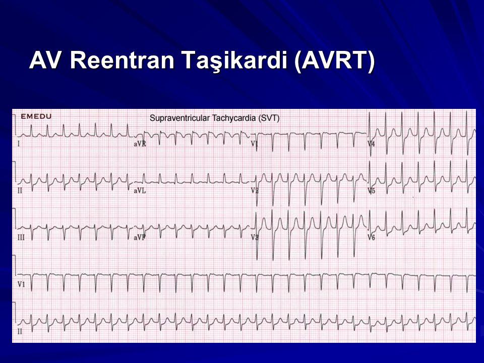 AV Reentran Taşikardi (AVRT)