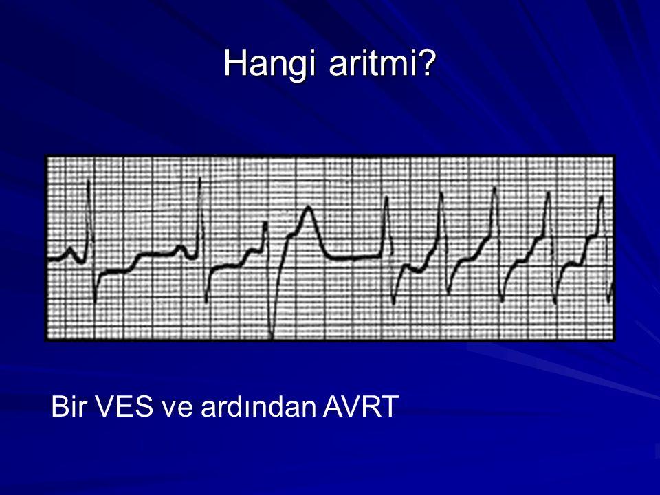 Hangi aritmi? Bir VES ve ardından AVRT