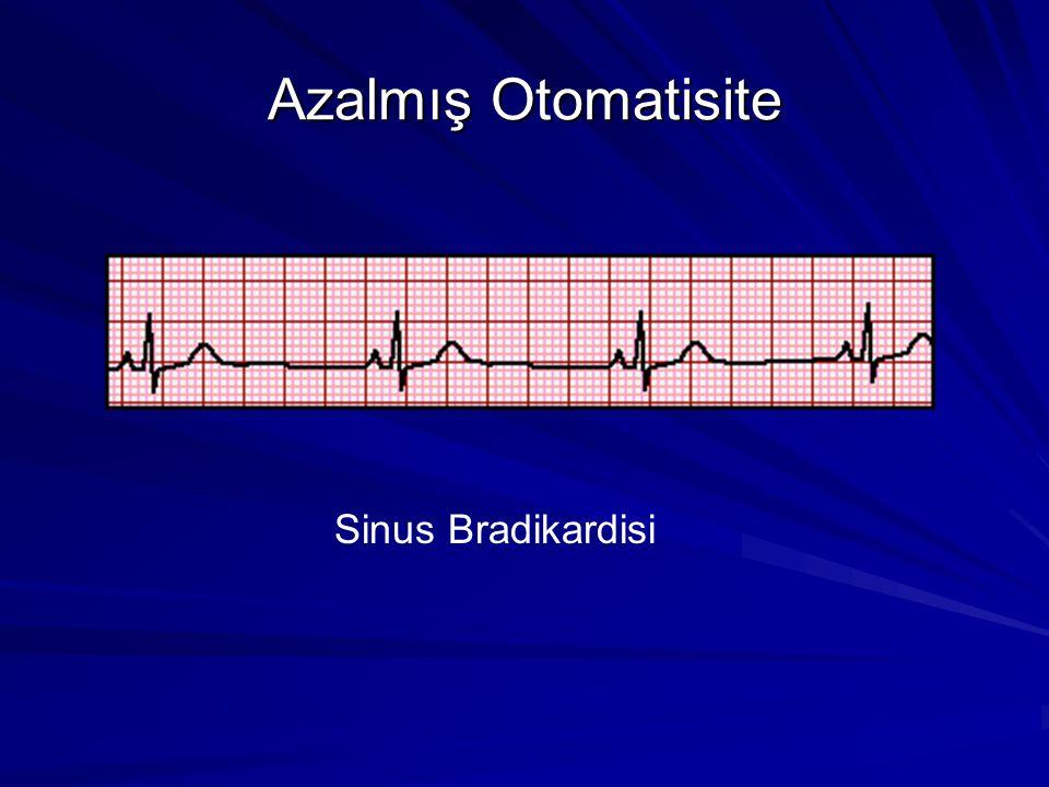 Artmış Otomatisite Sinus taşikardisi Junctional taşikardi Ektopik atriyal taşikardi www.uptodate.com