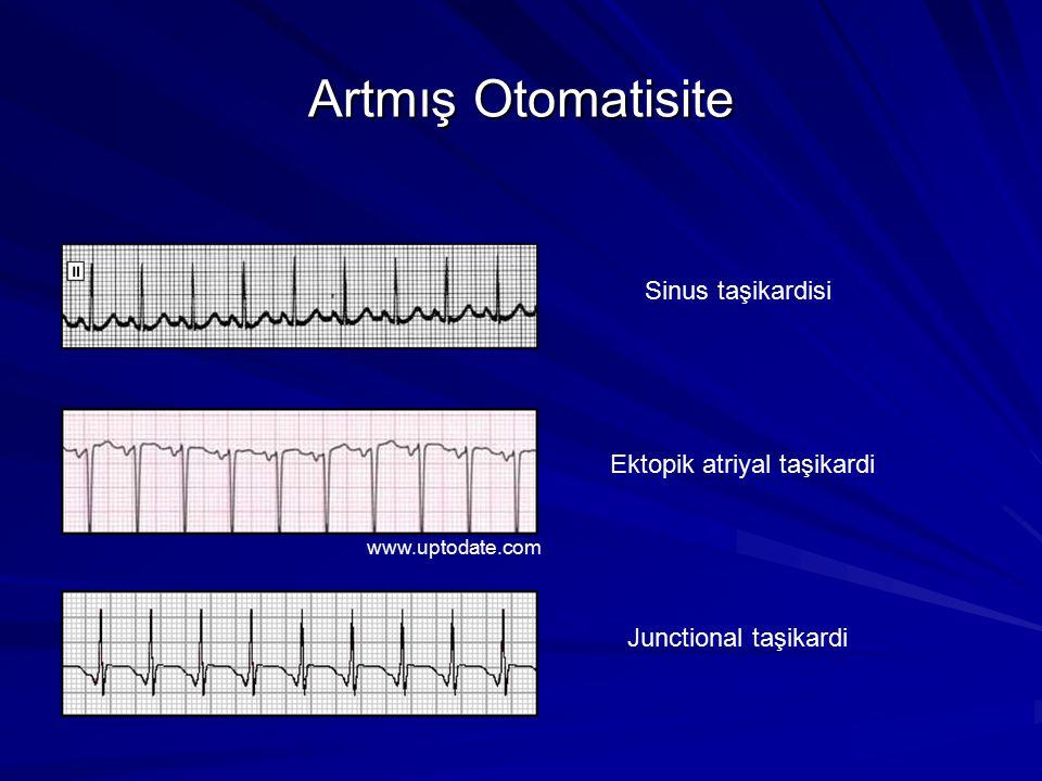 Atriyal Fibrilasyon EKG özellikleri: P dalgası izlenmez Amplitüdleri, genişlikleri ve morfolojileri sürekli değişen fibrilasyon(f) dalgaları Ventriküler cevabı, hızı (R-R) düzensiz = düzensiz bir düzensizlik www.uptodate.com