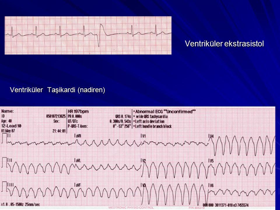 Ventriküler Taşikardi (VT) Reentri mekanizmasıyla da oluşabilir ve ölümcül bir aritmidir, VF ye dönüşebilir, bazen spontan sonlanır.
