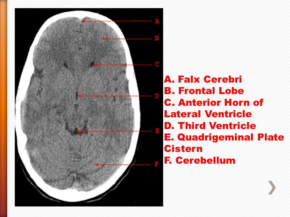 A.Falx Cerebri B. Frontal Lobe C. Anterior Horn of Lateral Ventricle D.