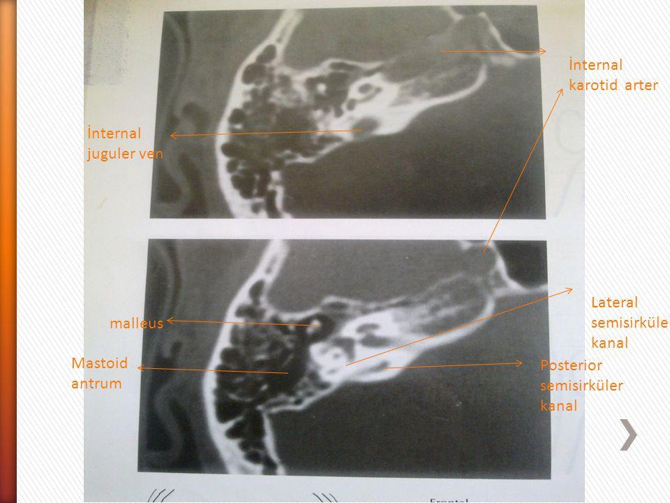 İnternal karotid arter malleus Posterior semisirküler kanal Lateral semisirküler kanal Mastoid antrum İnternal juguler ven