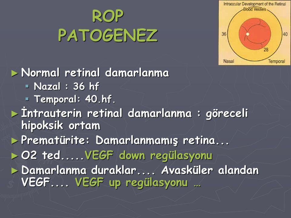 ROP PATOGENEZ ► Normal retinal damarlanma  Nazal : 36 hf  Temporal: 40.hf.