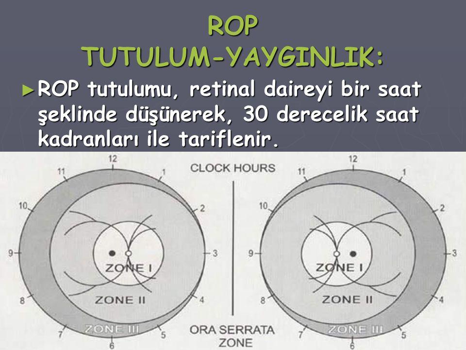 ROP TUTULUM-YAYGINLIK: ► ROP tutulumu, retinal daireyi bir saat şeklinde düşünerek, 30 derecelik saat kadranları ile tariflenir.
