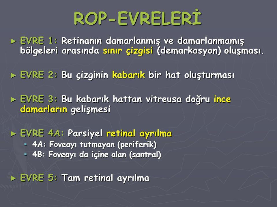 ROP-EVRELERİ ► EVRE 1: Retinanın damarlanmış ve damarlanmamış bölgeleri arasında sınır çizgisi (demarkasyon) oluşması.