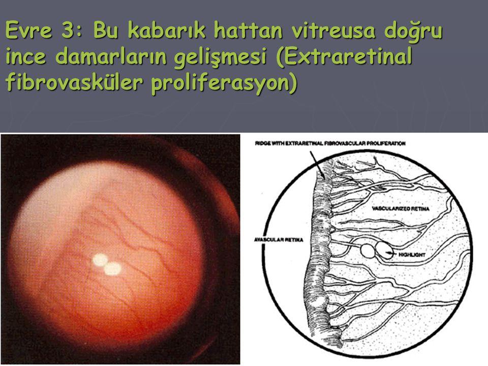 Evre 3: Bu kabarık hattan vitreusa doğru ince damarların gelişmesi (Extraretinal fibrovasküler proliferasyon)