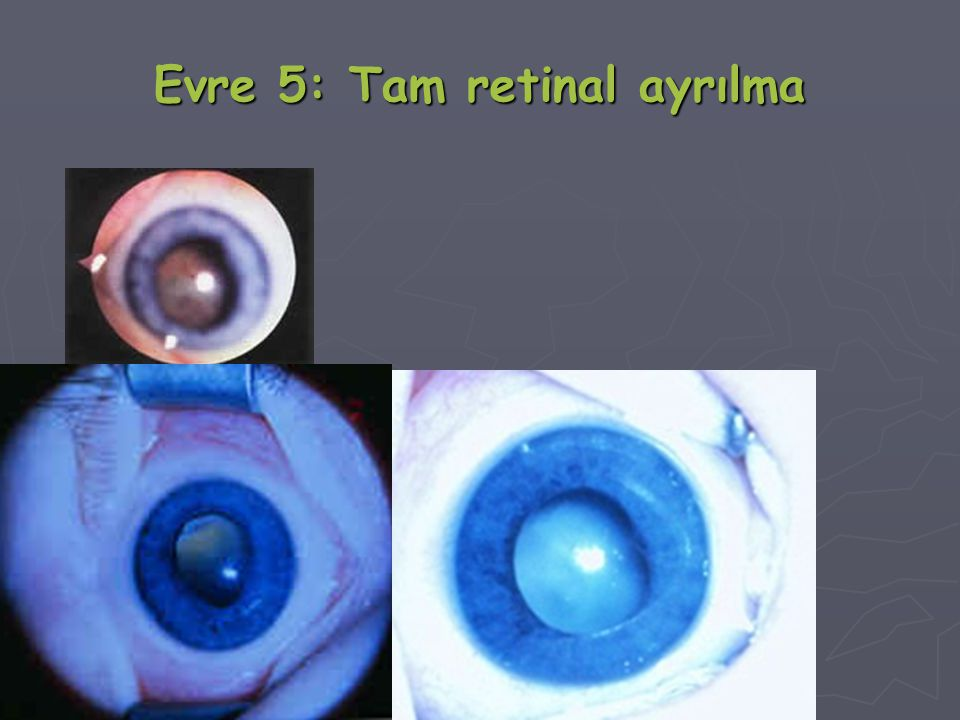 Evre 5: Tam retinal ayrılma