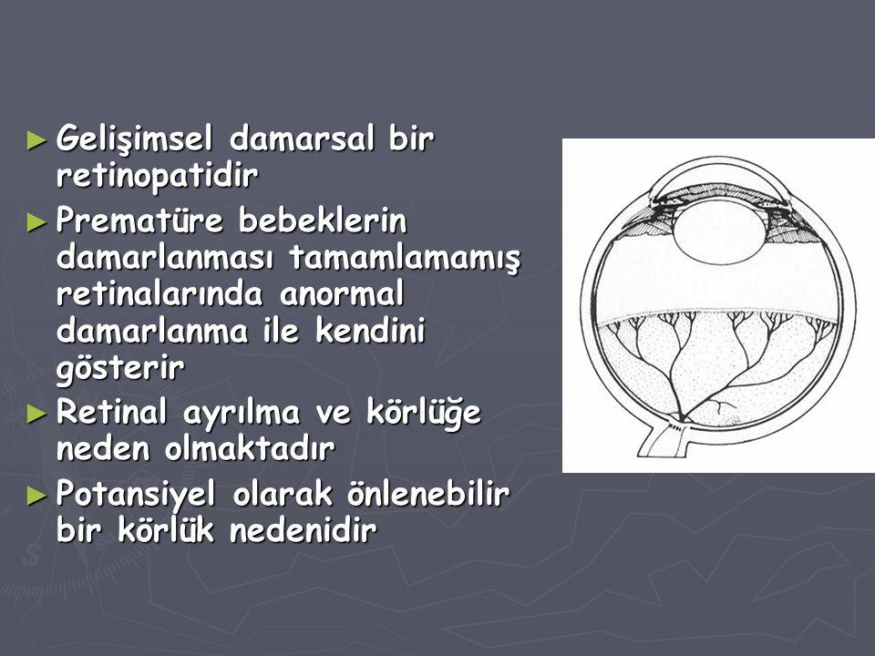 ► Gelişimsel damarsal bir retinopatidir ► Prematüre bebeklerin damarlanması tamamlamamış retinalarında anormal damarlanma ile kendini gösterir ► Retinal ayrılma ve körlüğe neden olmaktadır ► Potansiyel olarak önlenebilir bir körlük nedenidir