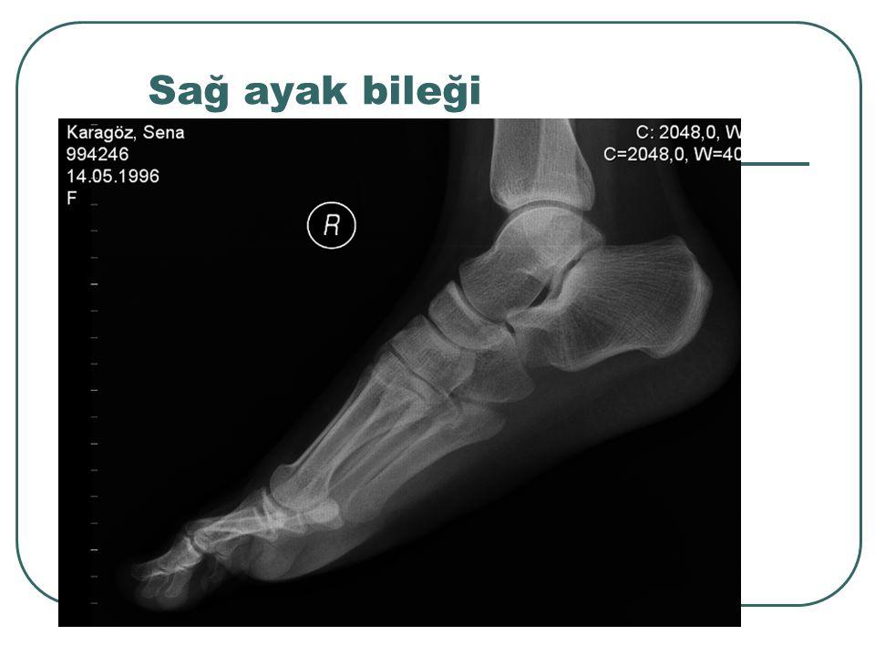 Sağ ayak bileği