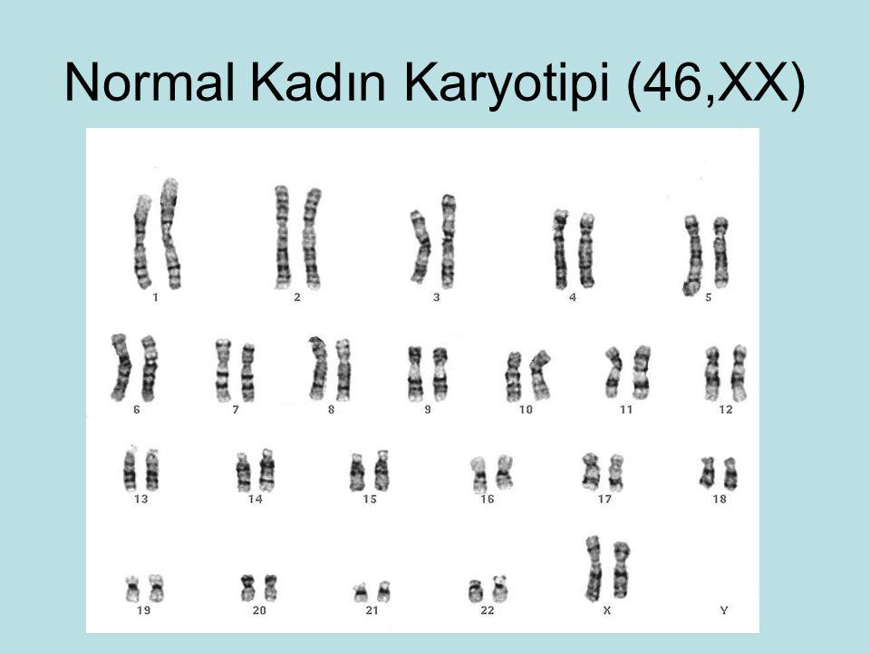 Normal Kadın Karyotipi (46,XX)