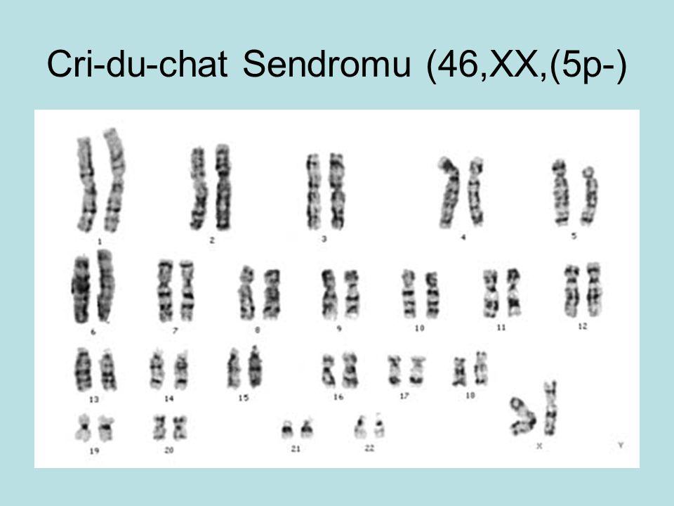 Cri-du-chat Sendromu (46,XX,(5p-)