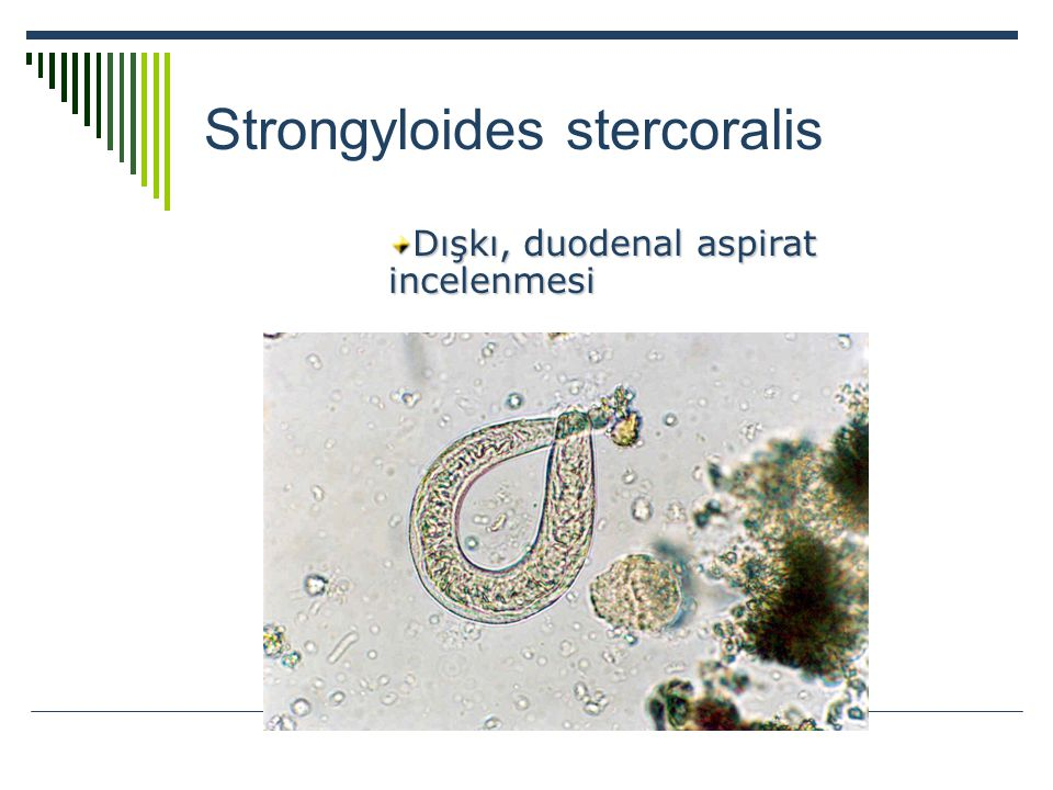 Strongyloides stercoralis Dışkı, duodenal aspirat incelenmesi