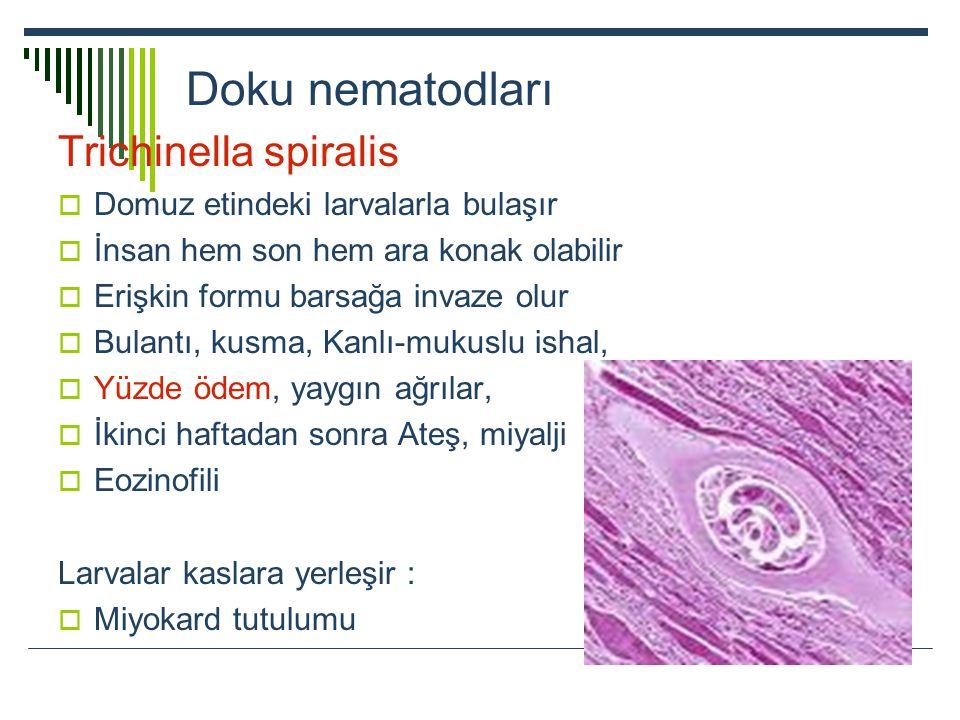 Doku nematodları Trichinella spiralis  Domuz etindeki larvalarla bulaşır  İnsan hem son hem ara konak olabilir  Erişkin formu barsağa invaze olur 