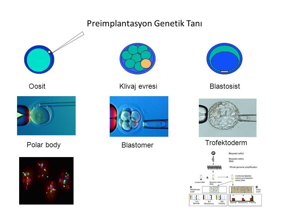 Preimplantasyon Genetik Tanı Oosit Polar body Klivaj evresi Blastomer Blastosist Trofektoderm