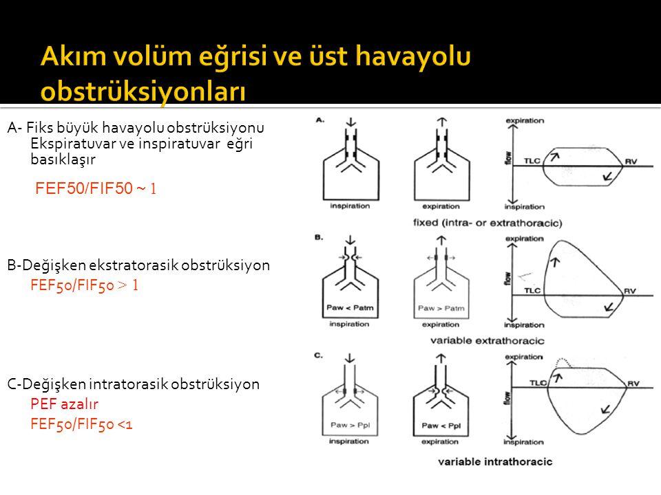 B-Değişken ekstratorasik obstrüksiyon FEF50/FIF50 > 1 C-Değişken intratorasik obstrüksiyon PEF azalır FEF50/FIF50 <1 A- Fiks büyük havayolu obstrüksiy