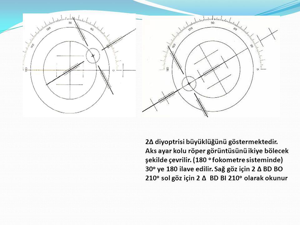 2Δ diyoptrisi büyüklüğünü göstermektedir. Aks ayar kolu röper görüntüsünü ikiye bölecek şekilde çevrilir. (180 o fokometre sisteminde) 30 o ye 180 ila