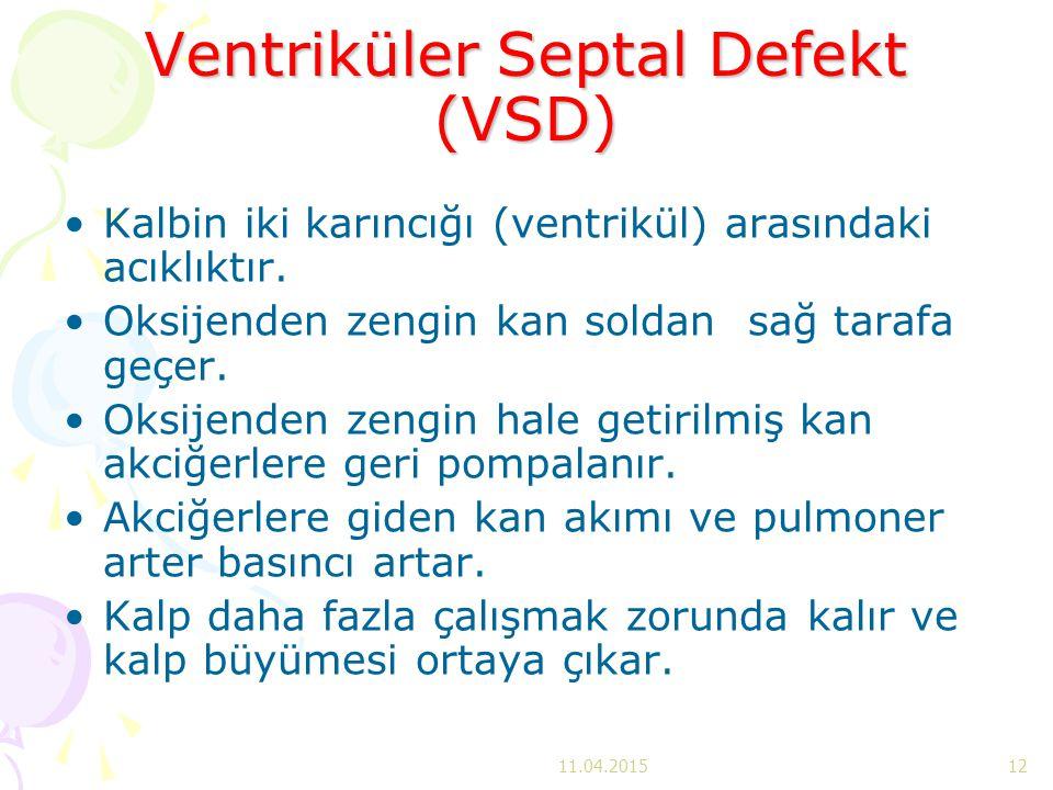 Ventriküler Septal Defekt (VSD) Kalbin iki karıncığı (ventrikül) arasındaki acıklıktır. Oksijenden zengin kan soldan sağ tarafa geçer. Oksijenden zeng