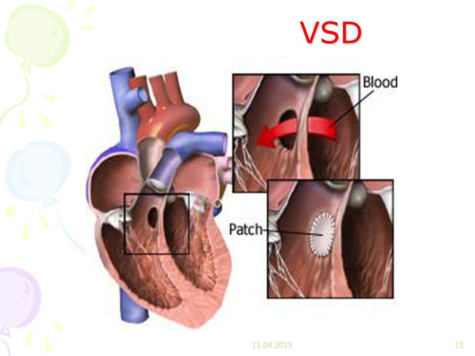 VSD VSD 11.04.201515