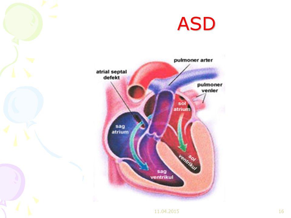 ASD ASD 11.04.201516