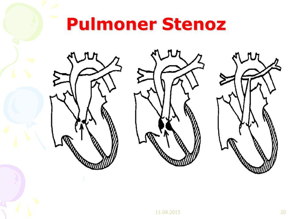 Pulmoner Stenoz 11.04.201520