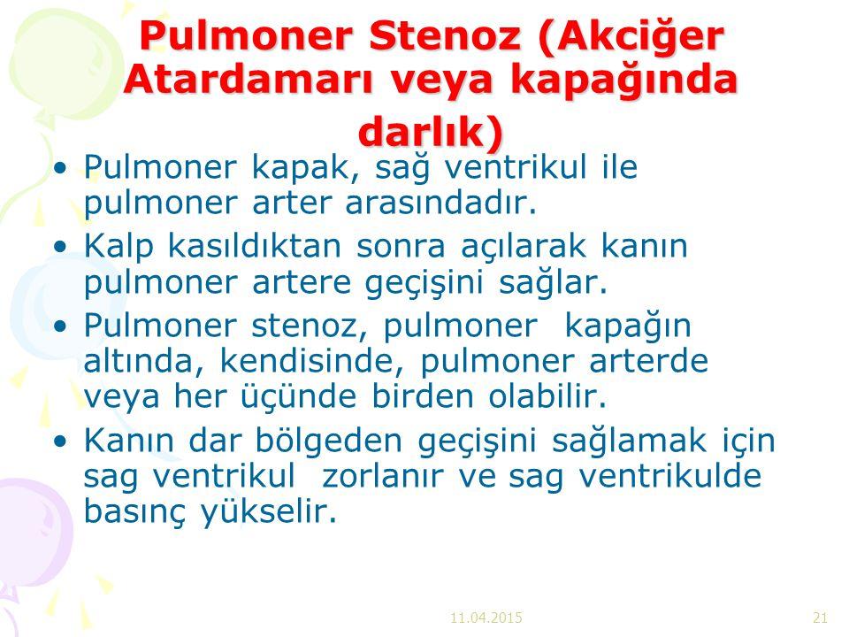 Pulmoner Stenoz (Akciğer Atardamarı veya kapağında darlık) Pulmoner kapak, sağ ventrikul ile pulmoner arter arasındadır. Kalp kasıldıktan sonra açılar