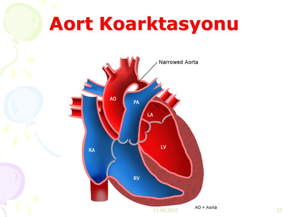 Aort Koarktasyonu 11.04.201523