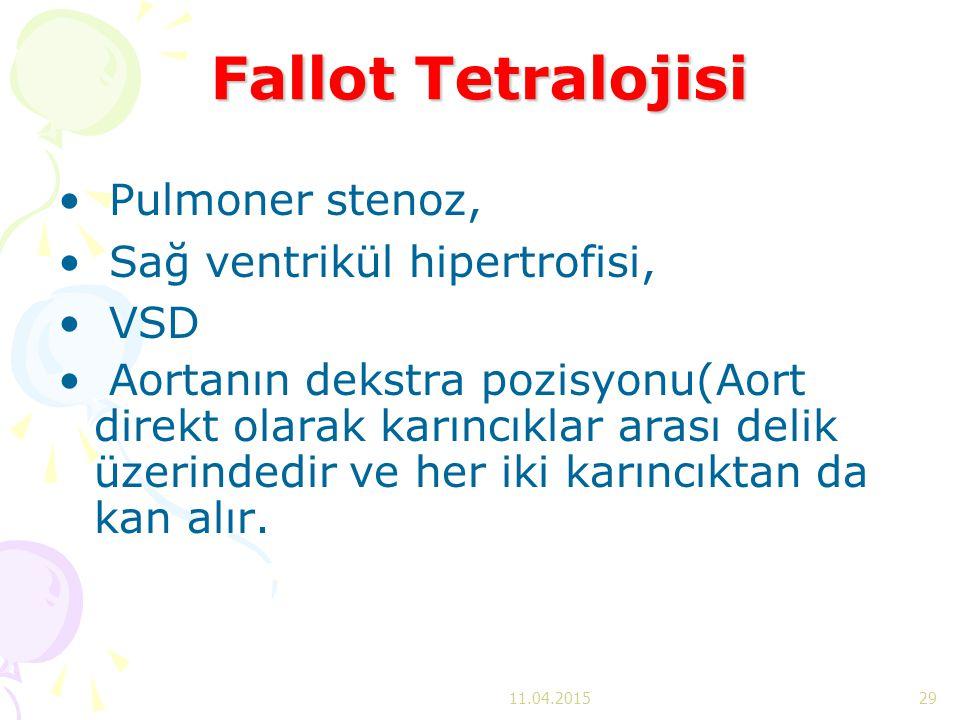 Fallot Tetralojisi Pulmoner stenoz, Sağ ventrikül hipertrofisi, VSD Aortanın dekstra pozisyonu(Aort direkt olarak karıncıklar arası delik üzerindedir