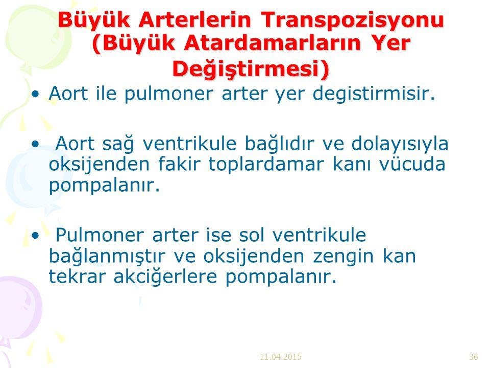 Büyük Arterlerin Transpozisyonu (Büyük Atardamarların Yer Değiştirmesi) Aort ile pulmoner arter yer degistirmisir. Aort sağ ventrikule bağlıdır ve dol