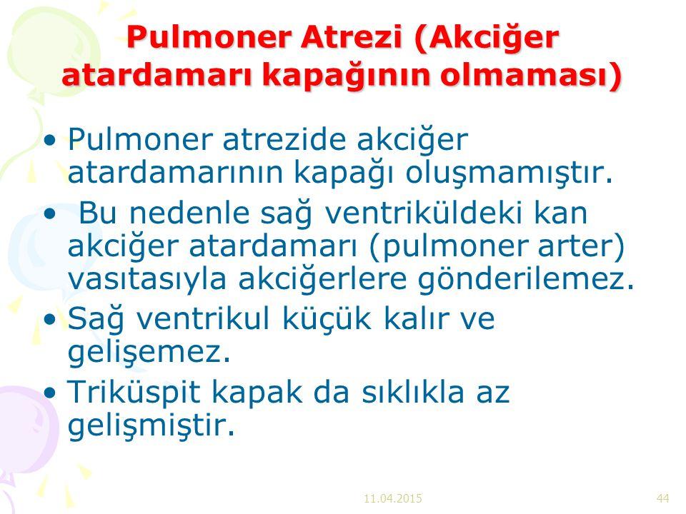 Pulmoner Atrezi (Akciğer atardamarı kapağının olmaması) Pulmoner atrezide akciğer atardamarının kapağı oluşmamıştır. Bu nedenle sağ ventriküldeki kan