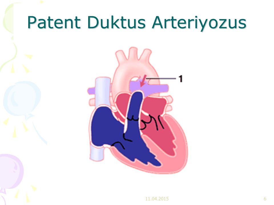 Patent Duktus Arteriyozus (PDA) Duktus arteriyozus pulmoner arter ile aorta arasında geçiş saglayan acıklıktır Duktus arteriyozus pulmoner arter ile aorta arasında geçiş saglayan acıklıktır Fonksiyonel kapanma ilk 10-15.