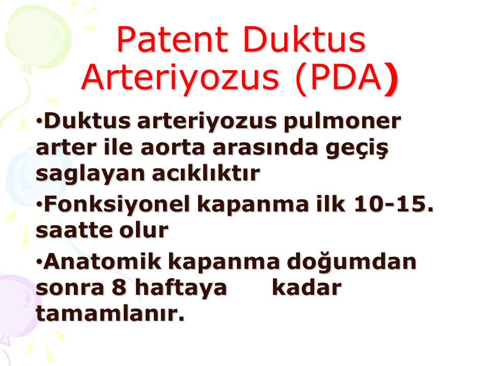 Patent Duktus Arteriyozus (PDA) Duktus arteriyozus pulmoner arter ile aorta arasında geçiş saglayan acıklıktır Duktus arteriyozus pulmoner arter ile a