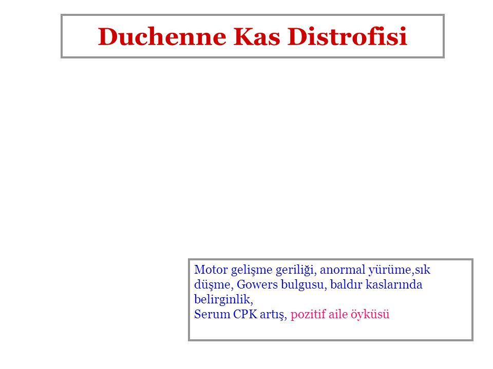 Duchenne Kas Distrofisi Motor gelişme geriliği, anormal yürüme,sık düşme, Gowers bulgusu, baldır kaslarında belirginlik, Serum CPK artış, pozitif aile