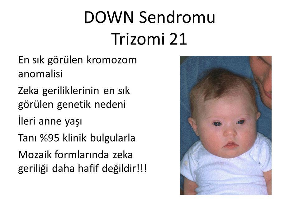 DOWN Sendromu Trizomi 21 En sık görülen kromozom anomalisi Zeka geriliklerinin en sık görülen genetik nedeni İleri anne yaşı Tanı %95 klinik bulgularl