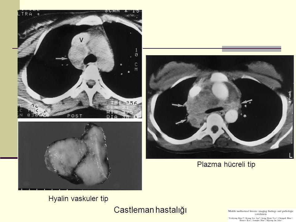 Castleman hastalığı Hyalin vaskuler tip Plazma hücreli tip