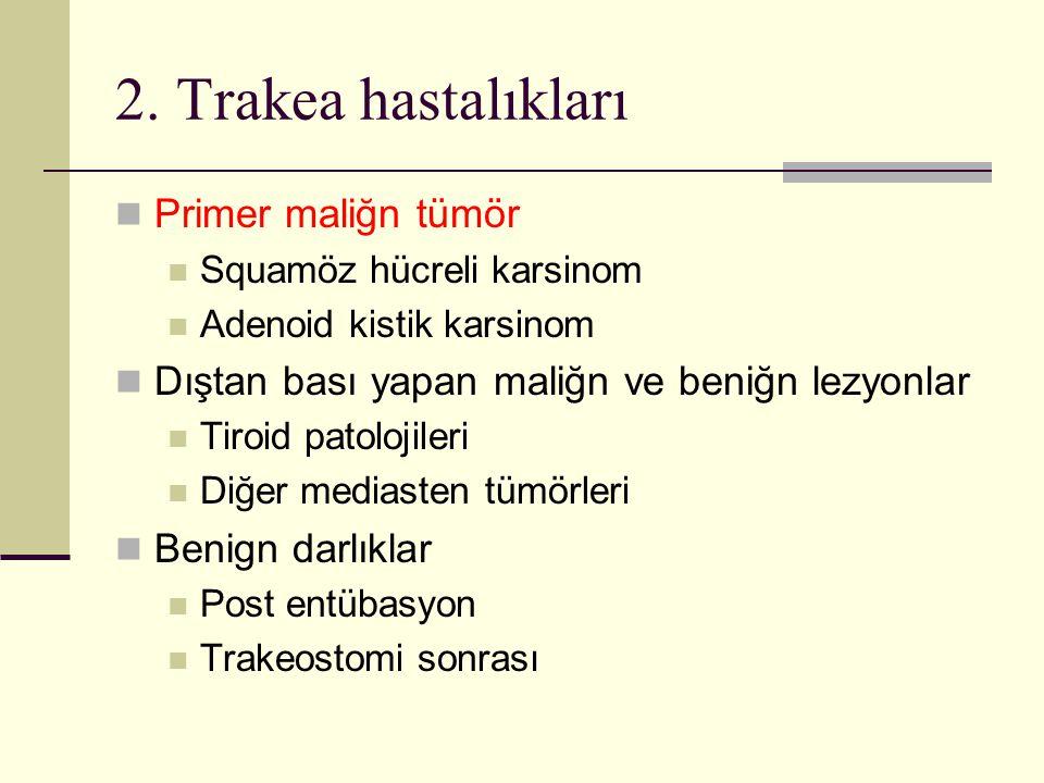 2. Trakea hastalıkları Primer maliğn tümör Squamöz hücreli karsinom Adenoid kistik karsinom Dıştan bası yapan maliğn ve beniğn lezyonlar Tiroid patolo