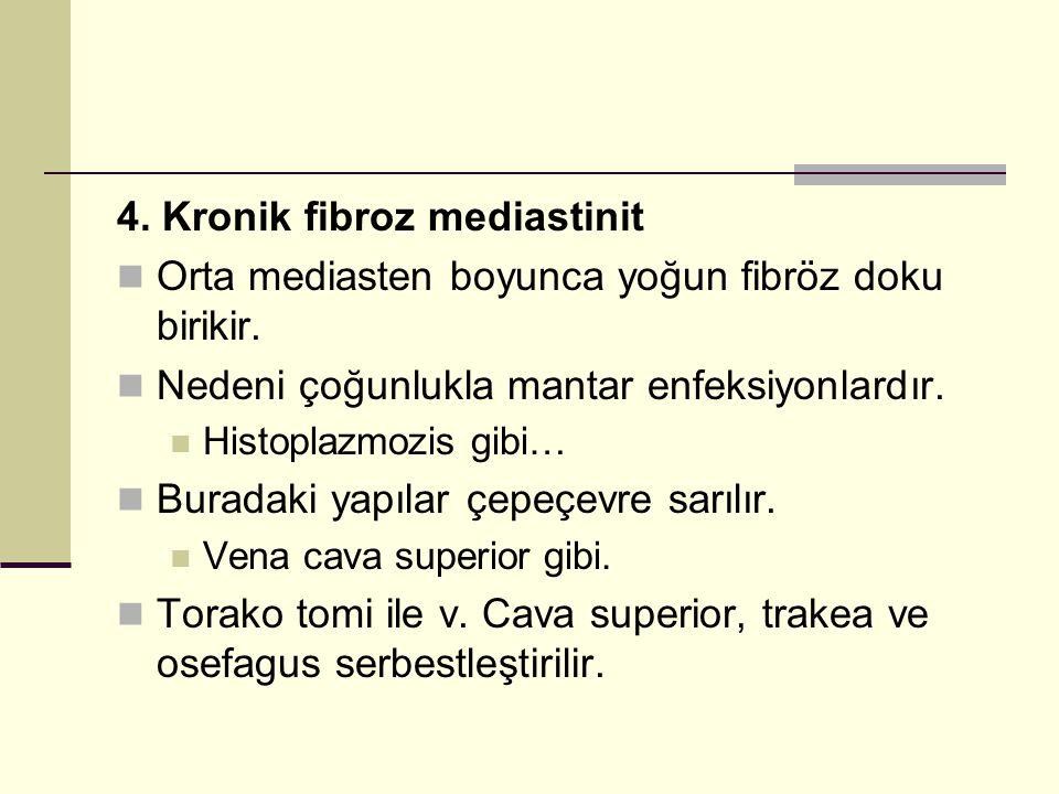 4. Kronik fibroz mediastinit Orta mediasten boyunca yoğun fibröz doku birikir. Nedeni çoğunlukla mantar enfeksiyonlardır. Histoplazmozis gibi… Buradak