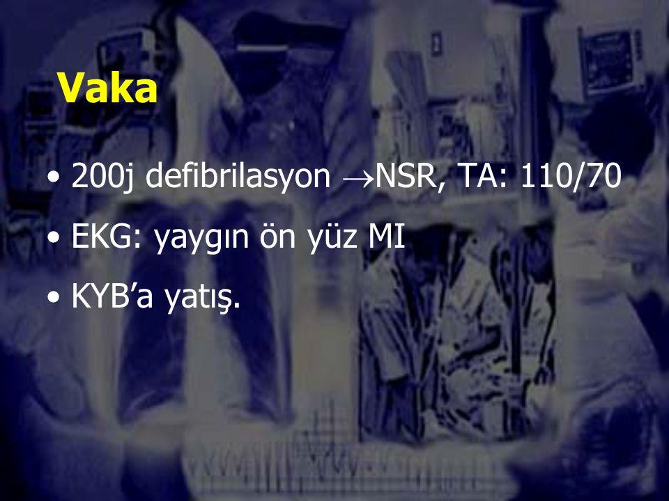 Vaka 200j defibrilasyon  NSR, TA: 110/70 EKG: yaygın ön yüz MI KYB'a yatış.