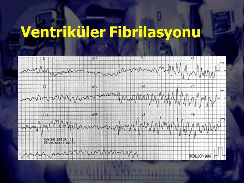 VF Etioloji iskemik kalp hastalığı (>%70), özellikle de akut koroner sendrom zemininde Elektrolit bozuklukları Elektriksel yaralanmalar Belirgin hipotermi Dijitaller, kinidin, trisiklik antidepresif gibi ilaç zehirlenmeleri