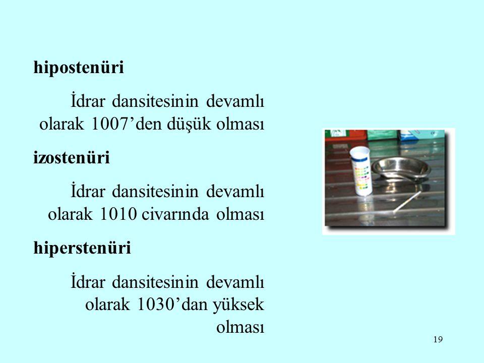 19 hipostenüri İdrar dansitesinin devamlı olarak 1007'den düşük olması izostenüri İdrar dansitesinin devamlı olarak 1010 civarında olması hiperstenüri