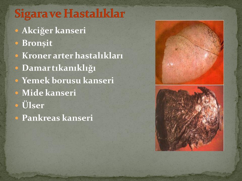 Akciğer kanseri Bronşit Kroner arter hastalıkları Damar tıkanıklığı Yemek borusu kanseri Mide kanseri Ülser Pankreas kanseri