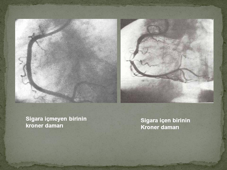 Sigara içmeyen birinin kroner damarı Sigara içen birinin Kroner damarı